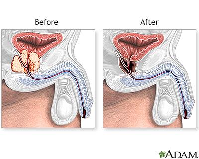 radiatio prostata