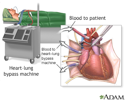 Hie multimedia textonly heart transplant series procedure ccuart Choice Image