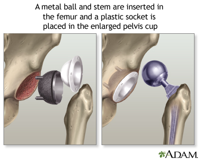 Hie Multimedia Textonly Hip Joint Replacement Series